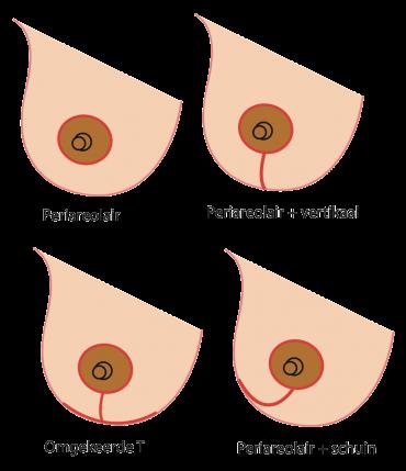 wat eten tijdens zwangerschap